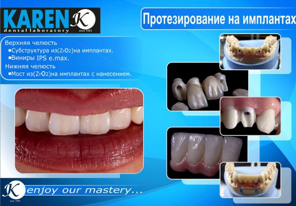 կարեն ատամնատեխնիկական լաբորատորիա